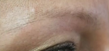 Patient's Sparse Eyebrows Before FUE Surgery