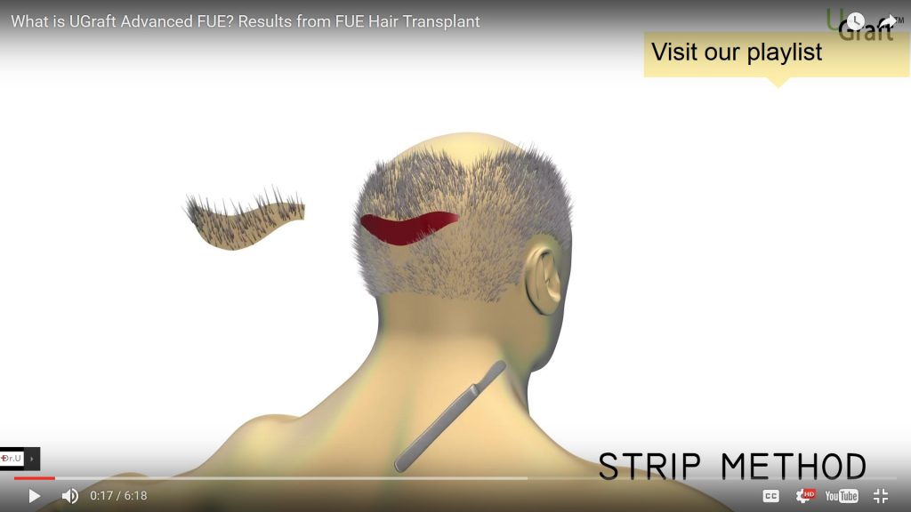 In FUSS, an elliptical strip donated from the back of the head
