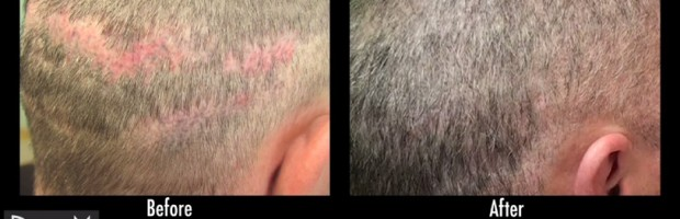 Advanced FUE Repairs Botched Strip Surgery Results