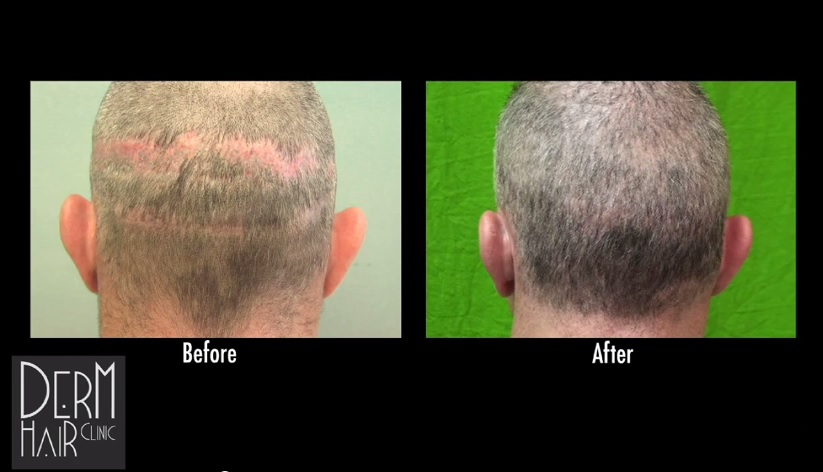 Multiple Strip Scars Repaired With Beard Hair