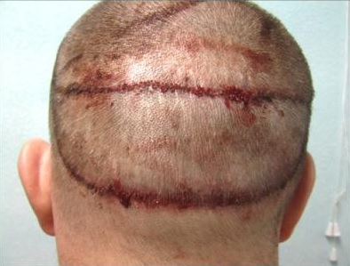 Hair Transplant Strip Surgery Scar Repair By Ugraft. Private Investigator In Las Vegas. Online Homeschooling For High School. Integration Testing Wiki Human Umbilical Cord. Top 10 Inventory Management Software. Depression At Night Only Chrysler In Detroit. Chiropractors In Alexandria Va. Moving Company Madison Wi German Bank Account. Top Rated Home Security System