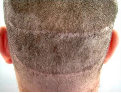 Two Strip Scars| Hair Transplant Repair|BHT Surgery|Patient Photo Before Procedure