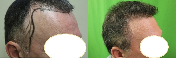 Hair Transplant Cost| Medical Tourism