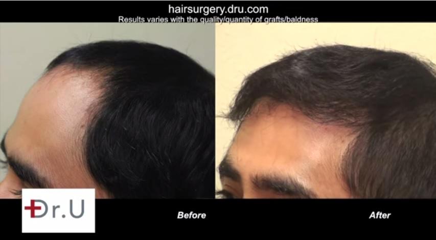 Restoring Temples| FUE Hair Transplant