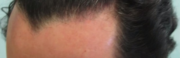 Patient With Sharp Widow's Peak Hairline - Before FUE Surgery